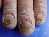 Crema per alleviamento di pelle a psoriasi